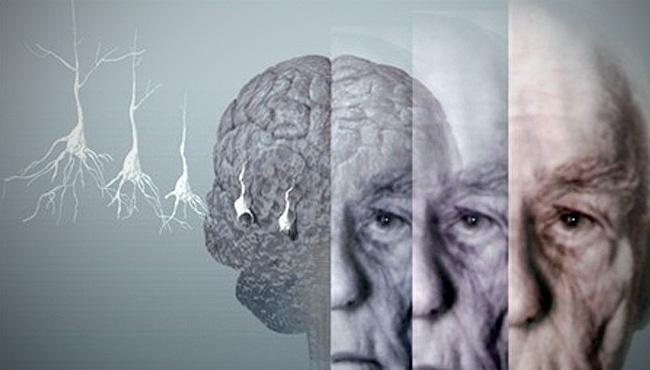 Összefüggés van az Alzheimer-kór és a diabétesz között