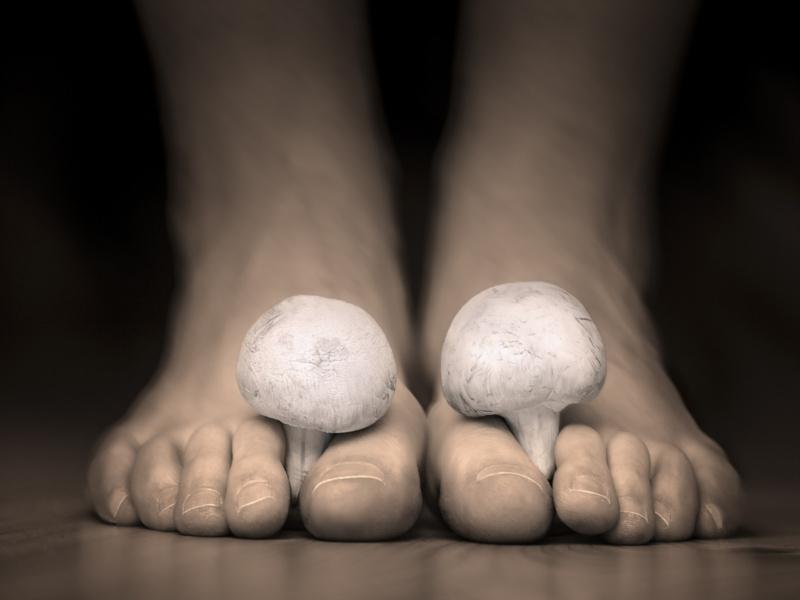 A lábgomba és kezelése