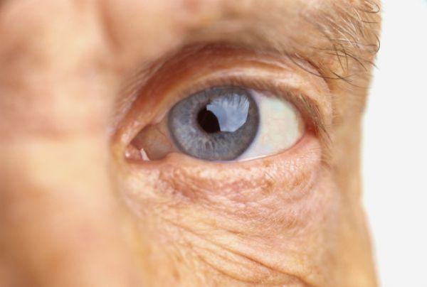 Az időskori makuladegenerációról